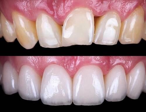 Choosing Between Cosmetic Dentists in South Beach
